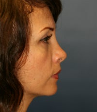 Revision tip rhinoplasty 605294