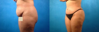 Tummy Tuck and Liposuction before 134130