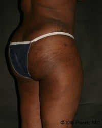 Buttock Augmentation 566726