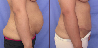 Tummy tuck before 142832