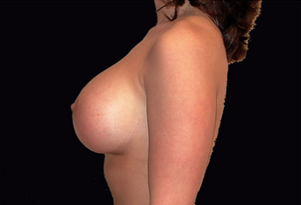 Breast augmentation and vertical mastopexy 391300