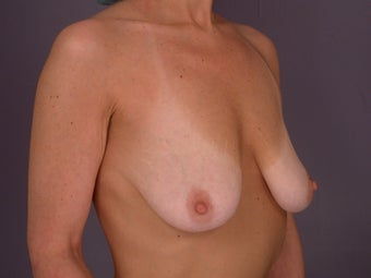 Breast Lift / Breast Augmentation before 291183