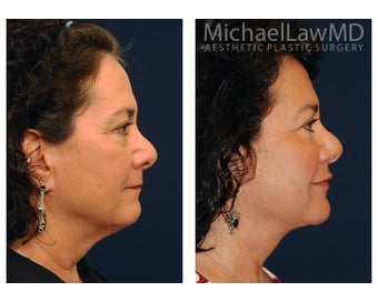 Facial Rejuvenation - Lower Face Lift 395206