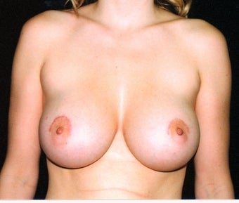 Breast augmentation after 474762