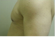 Male Breast Reduction 141526