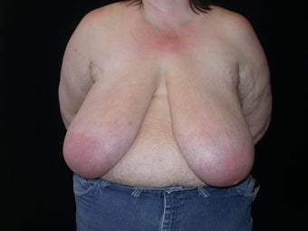 Breast reduction before 203501