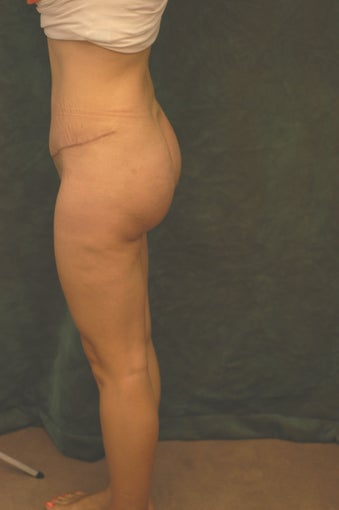 Women's Buttocks Augmentation   after 518135