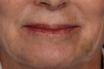 Botox and Juvederm  after 309243