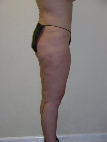 Laser liposuction after 317924