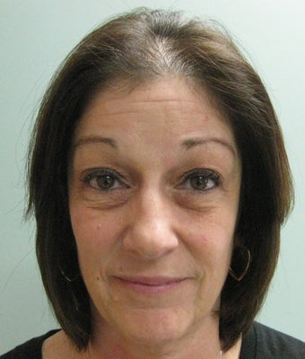"Quadbleph ""eyelid lift"" with midface lift, botox and juvederm to forehead before 266410"
