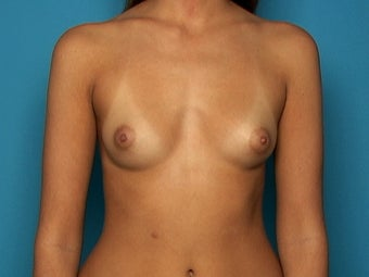 Breast Augmentation before 133684