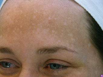 Melasma Treatment before 590841