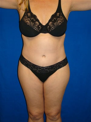 Extended Tummy Tuck Surgery after 151543