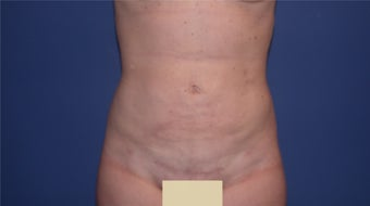 Liposuction after 199092