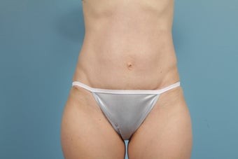Abdominoplasty after 609514