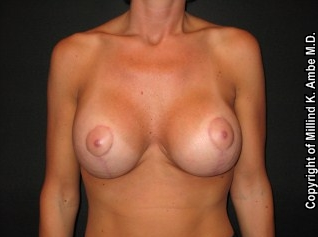 Breast Implant Revision after 542392