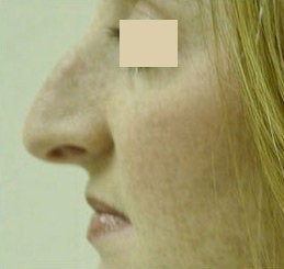 Nose Reshaping (Rhinoplasty) before 141544