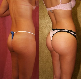 Brazilian Buttock Augmentation with microfat grafting 453361