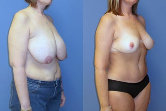 breast reduction and abdominoplasty