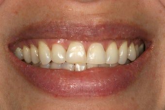Porcelain veneers before 503132