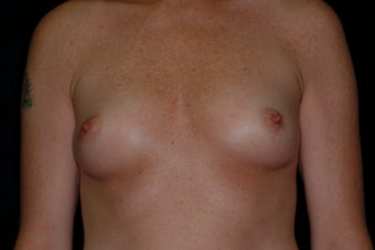 Breast Augmentation before 336384