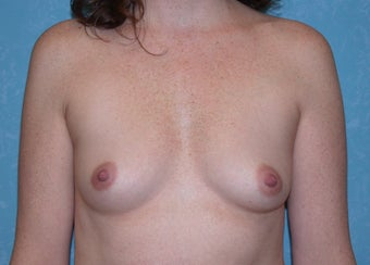 Bilateral Inframammary Fold Breast Augmentation before 517336