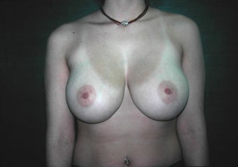 Vertical Breast Reduction before 117050