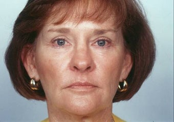 Laser Skin Resurfacing after 337221