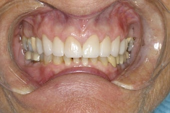 Diastema (Gap) Closure after 111716