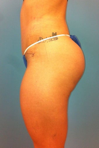 Gluteal Implants after 539055