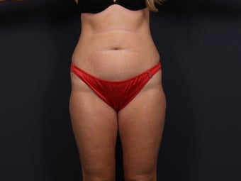 Tummy Tuck before 462576