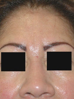 Botox for frown line (glabella)  after 91302