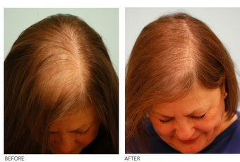 Female Hair Transplant before 133426