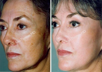 Non-Surgical Face Lift- Exoderm  before 242995