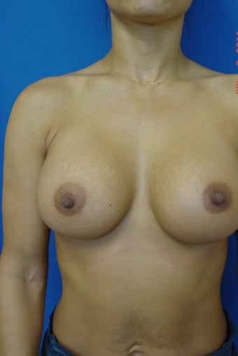 Breast Augmentation after 338418