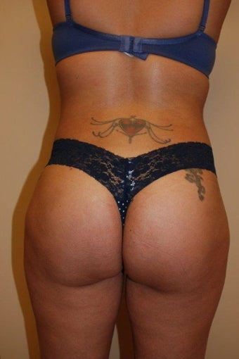 Buttock Augmentation after 534391