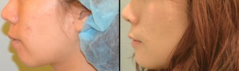 Chin Augmentation before 649424