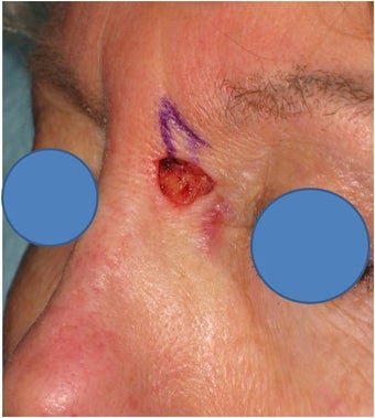 Repair of Mohs surgery defect on the left nose before 83242