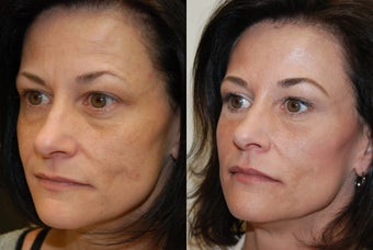 Non-surgical facial rejuvenation with Silikon-1000 and Botox. before 500583