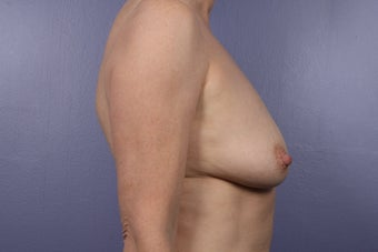 Breast Augmentation 466419