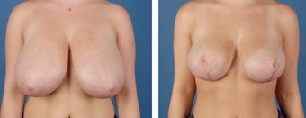 Breast Reduction after 355748