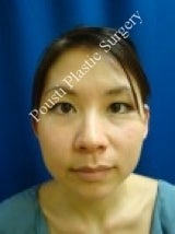 Ear Surgery (Otoplasty) before 579104