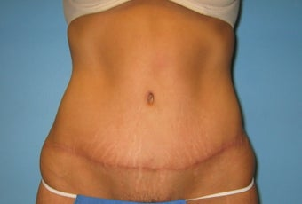 tummy tuck after 287700