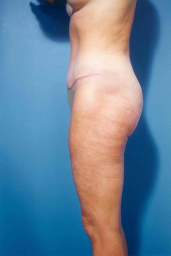 Abdominoplasty after 356390