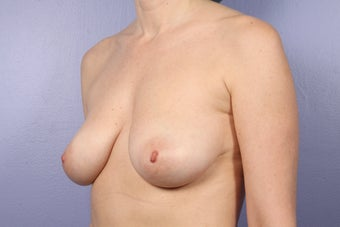 46 yr old with droopy and deflated breasts before 630801