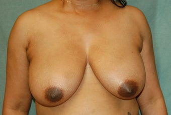 Vertical Scar Breast Reduction before 274546