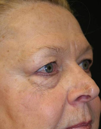 Blepharoplasty before 165948