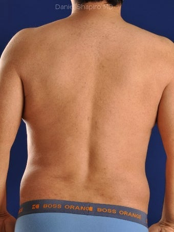 Vaser Hi Def Liposuction of chest, abdomen, back and flanks after 422695