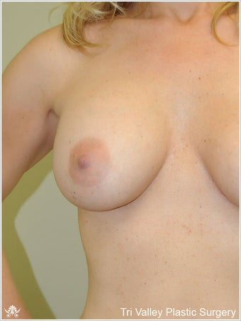 Breast Augmentation after 420891