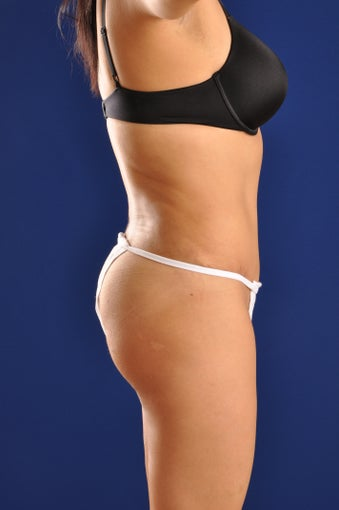 Vaser Hi Def Liposuction of the back and flanks with fat injections to the buttocks 422742